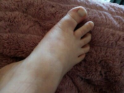 Foot pictures available