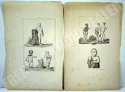 GRAVURES 19è ANOMALIES MEDICALES SIAMOIS CYCLOPE FEMME HOMME