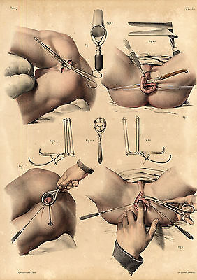 2 Antique Medical Anatomy Prints-RECTUM-OPERATION-SURGERY-Pl. 45-Bourgery-1831