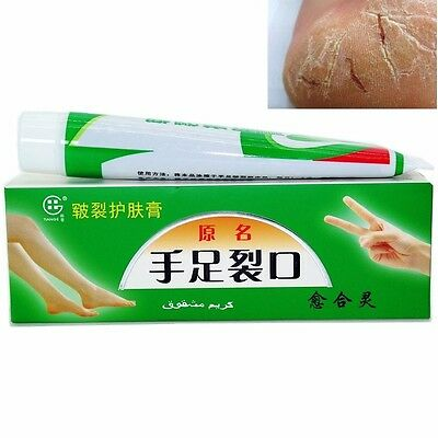 Foot Cream Cracked Skin Hands Foot Knees Elbows Chapped Heels Skin Care