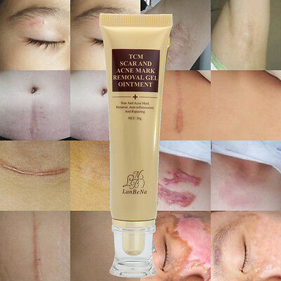LanBeNa Acne Scar Removal Cream Skin Repair Face Cream Acne Spots Treatment 30g