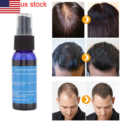 Fast Hair Growth Dense Regrowth Essence Treatment Women Men Anti Loss Great