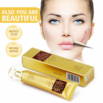 30g Beauty TCM SCAR AND ACNE MARK REMOVAL GEL OINTMENT (LanBeNa) Acne Scar Cream