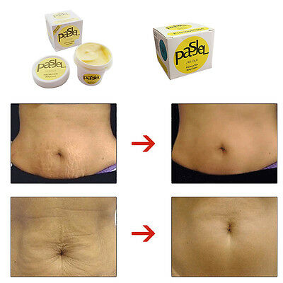 PASJEL Precious Skin w/ Vitam Cream for Eliminating Stretch Mark Pregnancy Scar
