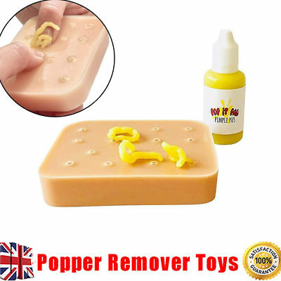 Pop it Pal Peach Pimple Popping Funny Toys Popper Remover Stop Pick Your Face UK