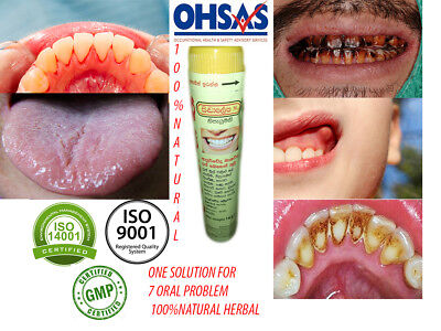Herbal Remdy for Bleeding Gums,Gum Boils,Cigarette/Betel Stains and for Teeth Wh
