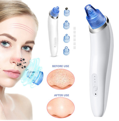 Electronic Blackhead Remover Facial Vacuum Suction Acne Pore Cleaner Extractor