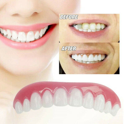 1X Instant Perfect Smile Apparecchi Ortodontici Simulati Cosmetic Veneer Cover