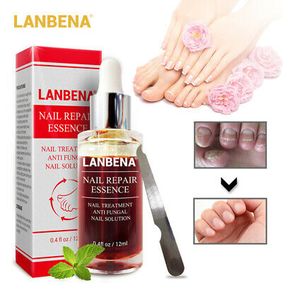 LANBENA Nail Repair Essence Remove Onychomycosis Serum Fungal Nail Treatment New