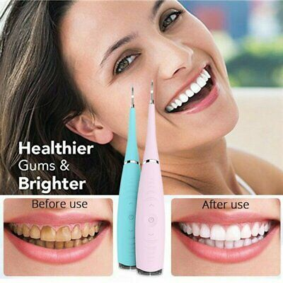 Ultrasonic Oral Irrigator Electric Tooth Cleaner Teeth Stain Dental Cleaning Kit