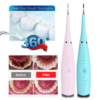 Electric Tooth Cleaner Ultrasonic Oral Irrigator Teeth Stain Dental Cleaning Kit