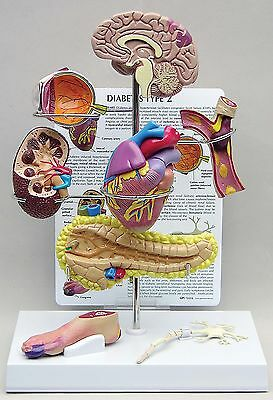 Diabetes Type II Anatomy Mini Model Set LFA #4010 CEM