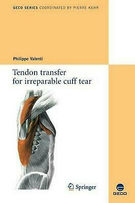 Tendon Transfer for Irreparable Cuff Tear by Valenti (English) Paperback Book Fr