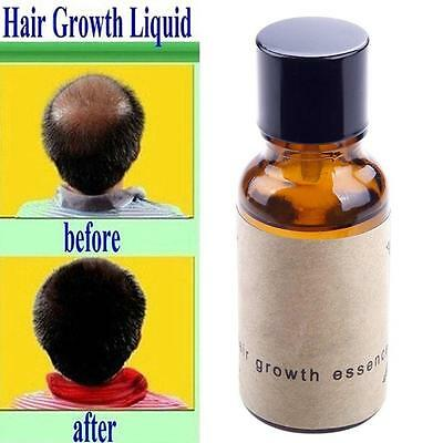 Pour Andrea Hair Growth Essence Traitement Perte De Cheveux gingembre genseng