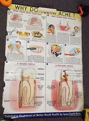 4 Vintage 1944 WHY DO TEETH ACHE Dental Science EDUCATIONAL POSTERS Ipana