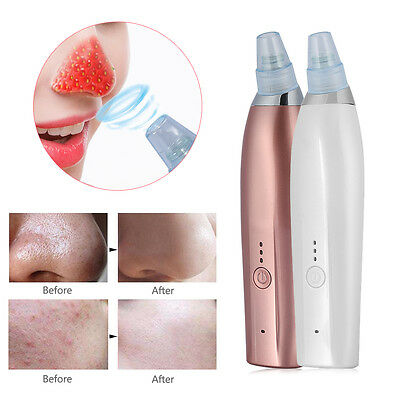 Electric Blackhead Cleaner Acne Remover Facial Pore Blemish Cleanser Tool Kit