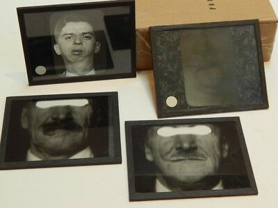 4 Antique Lantern Slides Medical Dentistry Oddities Abnormalities Patients #2