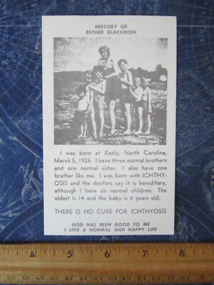 History Of Esther Blackmon Circus Performer Kenly NC Ichthyosis Disorder hj3258