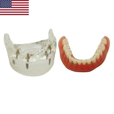 USA Dental Implant Restoration Model Over-denture Inferior with 4 Implant 600202