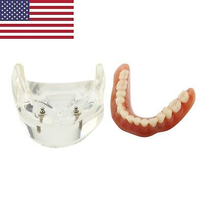 Dental Patient Education Implant Model Overdenture Lower Jaw 2 Implants NISSIN