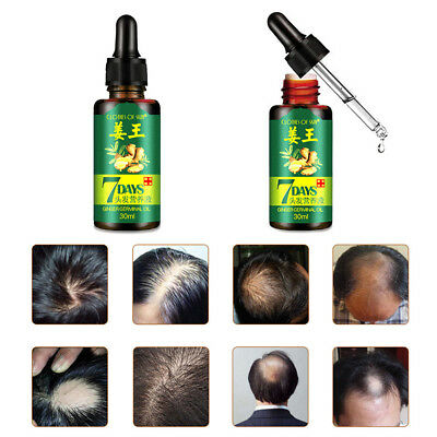 7 Days Hair Growth Ginger Essential Oil Nourishing For Damaged Hairs Striking