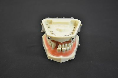 Columbia Dentoform Typodont Hinged Dental Mold Model Teaching Tool #1681