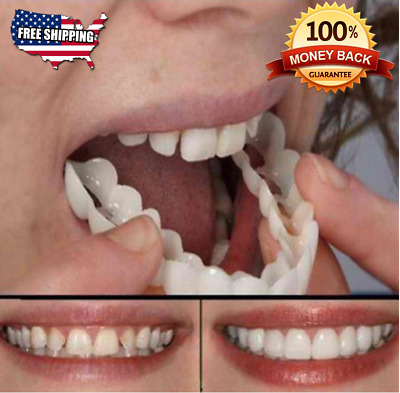 TrueSmile - The Perfect Smile With Fake Tooth Cover Top Cover - FREE SHIPPING !!