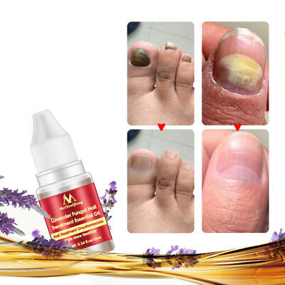STOP FUNGUS Nice Nails Toe Finger Nail Anti Fungal Bacterial Treatment Oil 10Ml