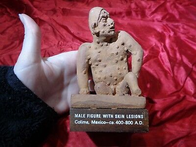 Mexican Mayan Aztec Clay Pottery Statue Male Figure with Skin Lesions