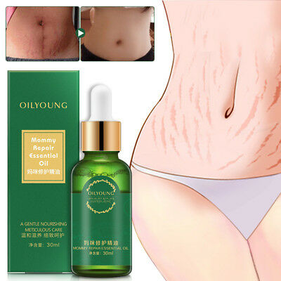 New Mommy Pregnancy Massage Essential Oil Scars Stretch Mark Removal Cream Hot