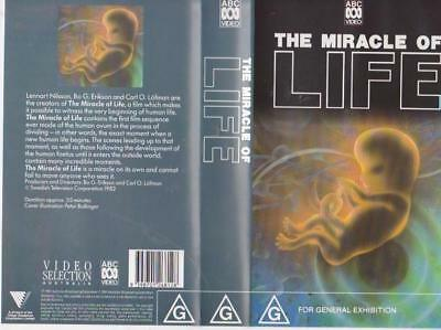 The Miracle Of Life Abc   Vhs Video Pal~A Rare Find