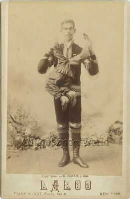 Laloo circus freak w parasitic twin P.T. Barnum sideshow antique cabinet photo