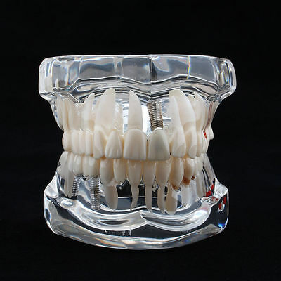Adult Standard Typodont Demonstration Teeth Model Dental Disease Teaching Study
