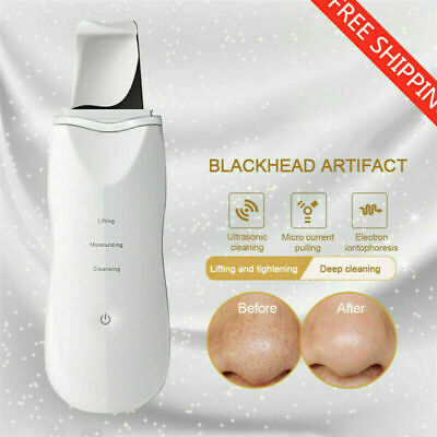 Ultrasonic Facial Skin Care Scrubber Skin Peeling Cleaning Ion Massager Machine~