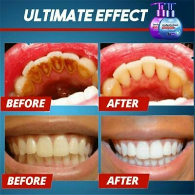 Instant Clean Intensive Stain Removal Whitening Toothpaste Fight Bleeding Gums