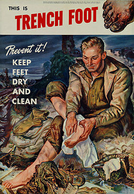 2W48 Vintage WWII This Is Trench Foot Wartime Health War Poster WW2 A4