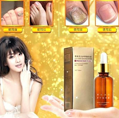 FD3421 Anti Fungal Nail Treatment Toe Nail Finger Fungus Infection NATURAL 30ML
