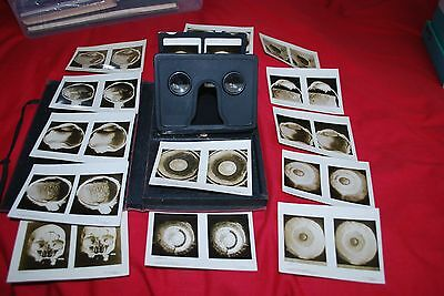 Rare Boxed Anatomy & Physiology Of The Eye Stereo Cards & Viewer  Complete
