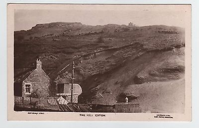 The Hill Eston, Middlesbrough, Teesside, North Yorkshire Rp Postcard