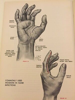 Clinical Symposia Frank Netter Vintage Medical Book CIBA Surgical Anatomy Hand