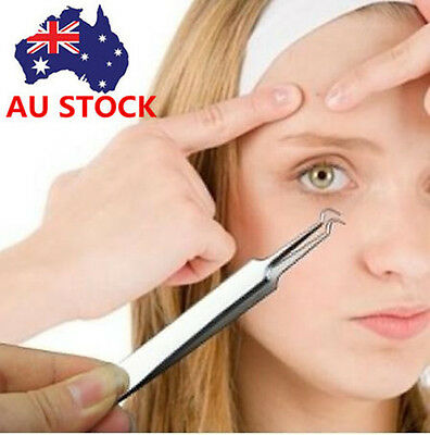 AU Curved / Straight Blackhead Acne Clips Pimple Comedone Remover Face Cleanser