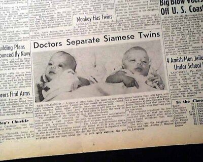 Very 1st SIAMESE TWINS Conjoined Separation Surgery Success 1953 Newspaper