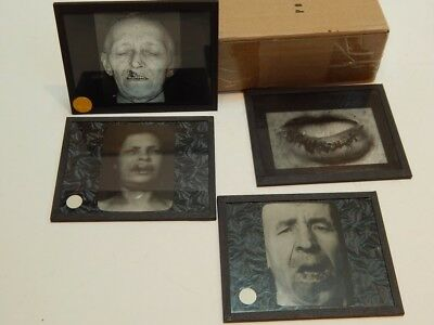 4 Antique Lantern Slides Medical Dentistry Oddities Abnormalities Patients