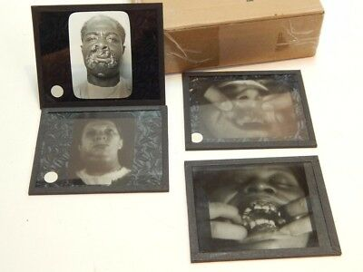 4 Antique Lantern Slides Medical Dentistry Oddities Abnormalities Patients #3