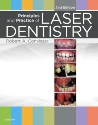 Principles and Practice of Laser Dentistry, 2e (Hardcover), Convi. 9780323297622
