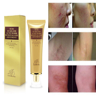 Removal Cream Spots Scar Stretch Marks Treatment Effective Face Skin Care 30g BN