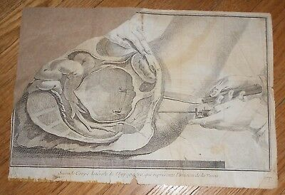 1743 Antique Medical Print of Surgery Copperplate Engraving oh Human Anatomy
