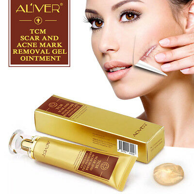 Scar and Acne Remover Ointment  TCM Treatment Wound Repair Cream Gel For Beauty