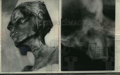 1967 Press Photo X-ray of mummy, Pharoah Rameses II, in Cairo, Egypt museum