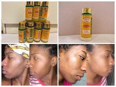 Piment Doux Lightening And Cleansing Lotion Original Brand From Cameroon .